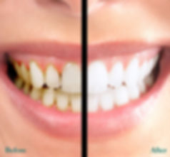Teeth whitening, Oak Dental care, dentist, dental, teeth, surgery, Ormskirk, Southport, Dental, NHS, Private, Maghull, Liverpool