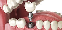 Dental Implants, Dentists, NHS, Emergency Dental, Ormskirk, Liverpool, Southport, Litherland, Maghull