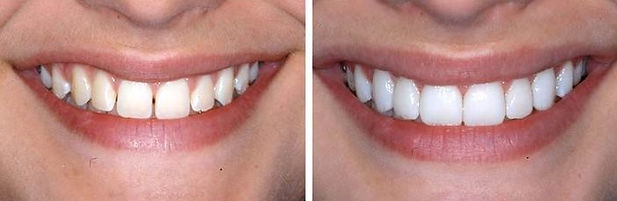 Veneers, veneer, dentist, oak, dental, surgery, ormskirk, dentist, NHS, Liverpool, Maghull, Southport, litherland, treatment
