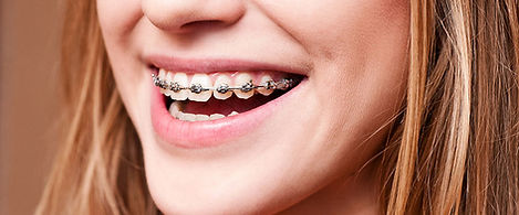 braces, dentist, ormskirk, southpot, liverpool, dental, NHS, Private, teeth, litherland, maghull, Oak, surgery, orthodontic