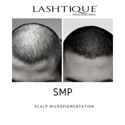 smp_ scalp micropigmentation course _www