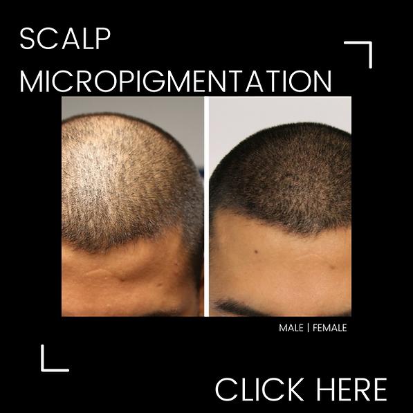 Scalp Micropigmentation _SMP _Brisbane_www.lashtiqueprofessional.com.png