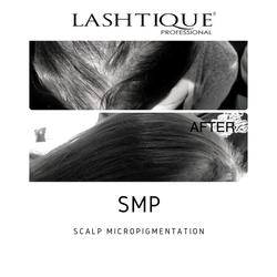scalp micropigmentation training_www