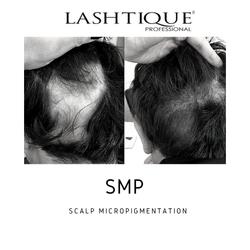 smp scalp micropigmentation course _www.