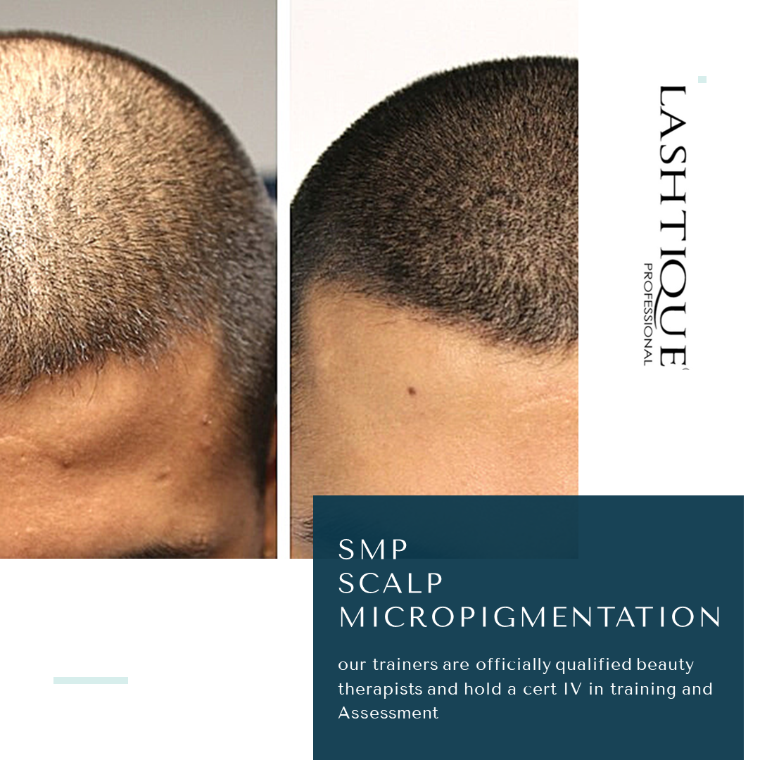 Scalp Micropigmentation Courses Brisbane