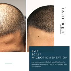 Scalp Micropigmentation Courses Brisbane