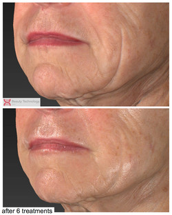 lifting and skin tightening after 6