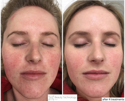 rosacea and psoriasis on hairline
