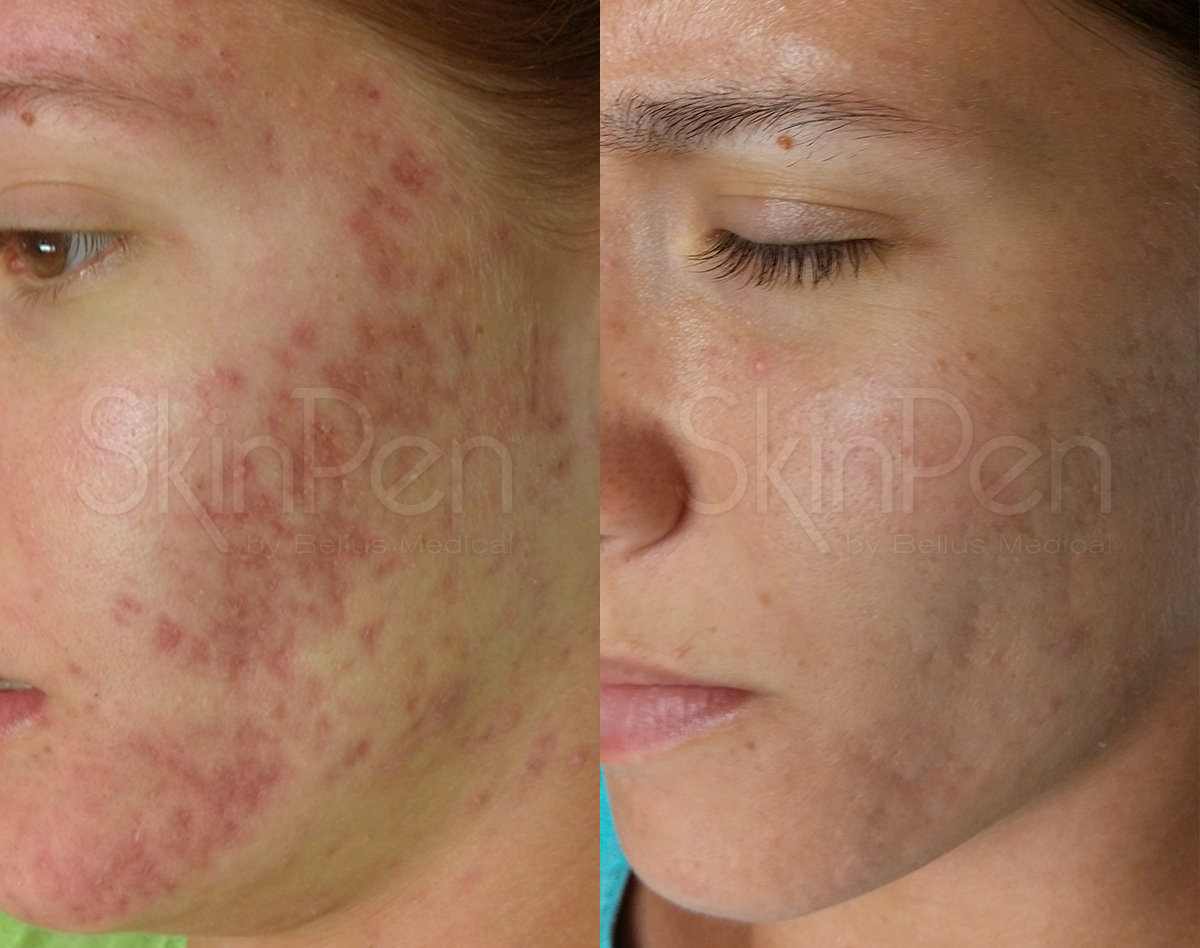 acne scarring x6 treatments --wm