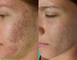 acne scarring x6 treatments --wm