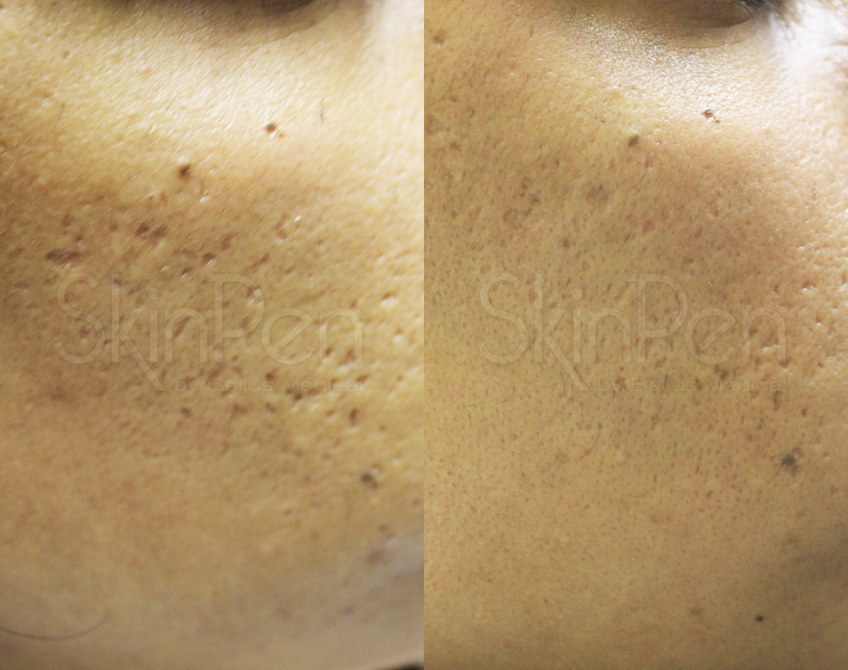 icepick scarring x5 treatments-wm