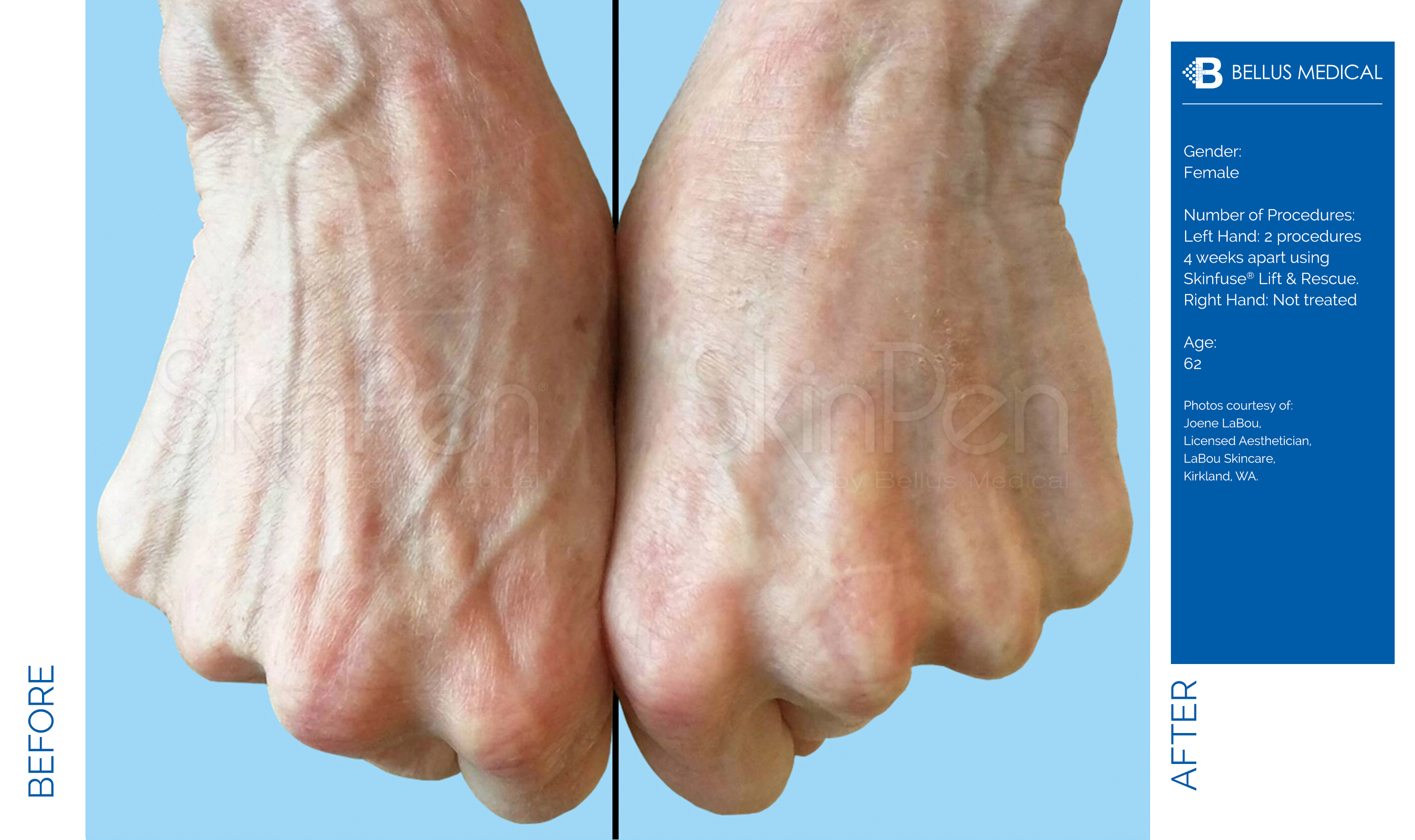 hands x2 treatments age 62