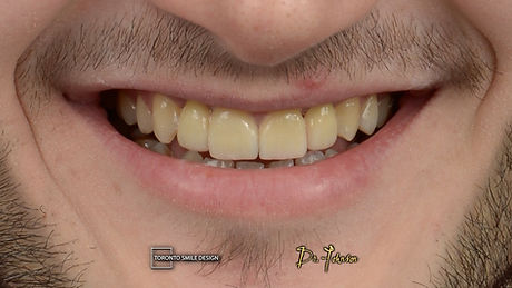 What are dental implants - price of dent