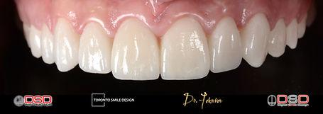 gum contouring - gum contouring healing.