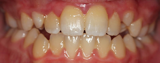CASE 5 of the week - Before Orthodontic Treatment Intraoral Picture