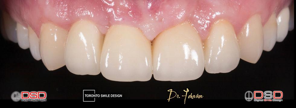 how much are dental implants - toronto dental implants - dental implant procedure.jpeg