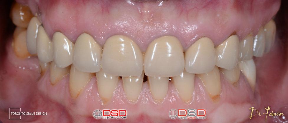 Implant Toronto - Before Smile Design -