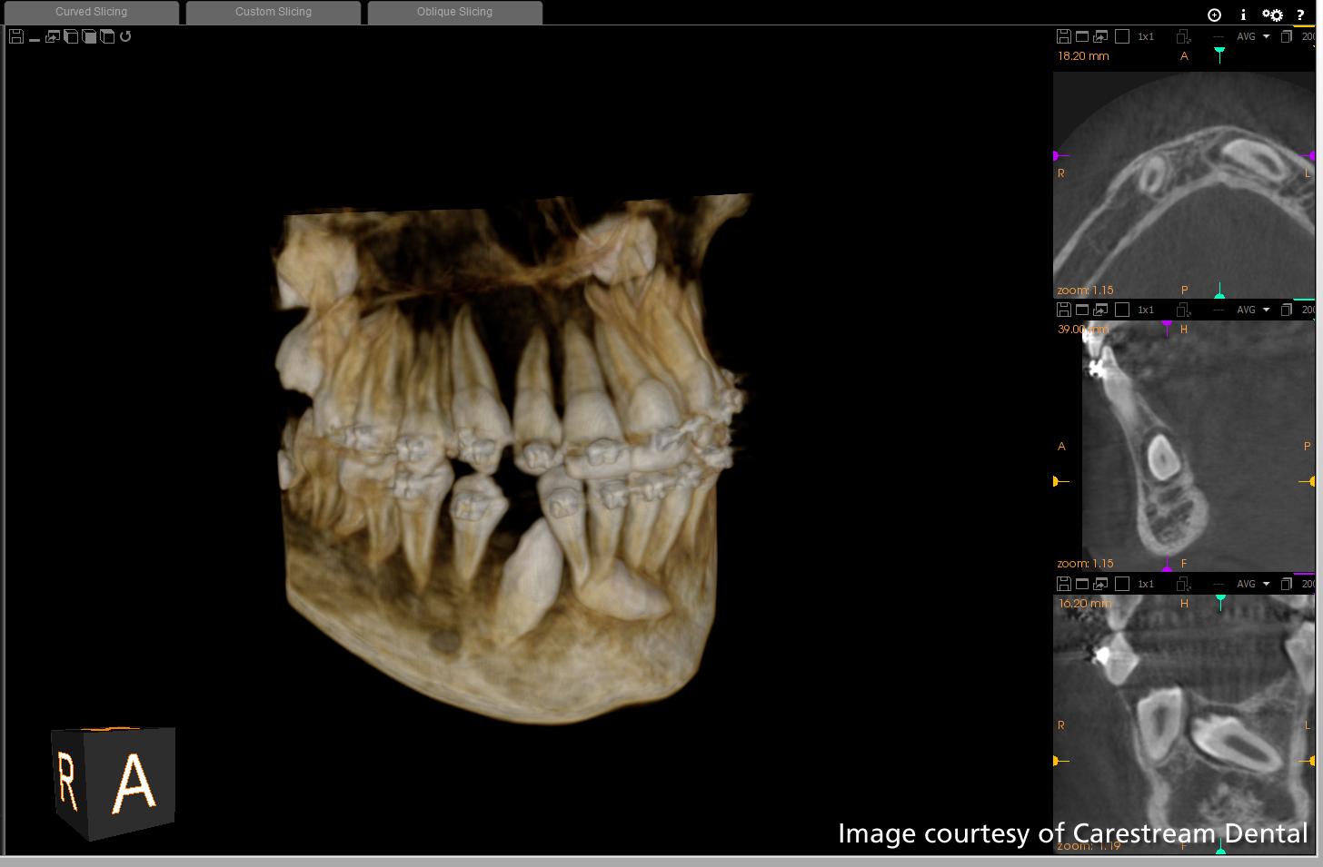 implant diş tedavisi