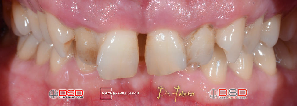 Smile Makeover Case Before Treatment - S