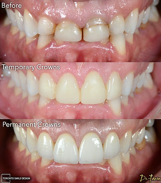 Porcelain Crowns - Cosmetic Dentist - To