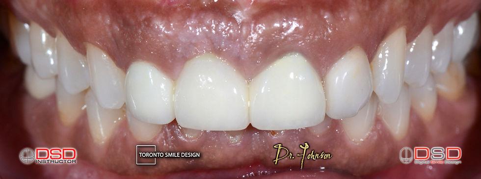 Cosmetic Dentist Toronto - Veneer Toront