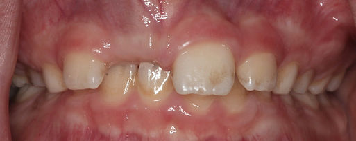 before intraoral pictures of orthodontic missing teeth case