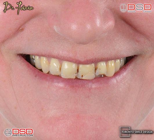 Toronto Smile Design - Cosmetic Dentist