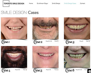 Smile Design Gallery.jpg