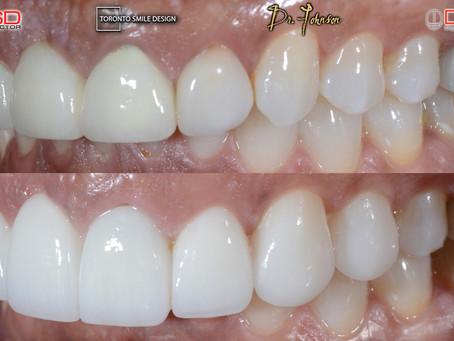 Dental Bridge Cost – Replacing Missing Teeth