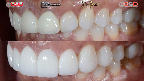 Porcelain Crowns Toronto - Cosmetic Dent