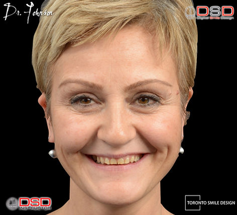 Digital Smile Design - Toronto Cosmetic Dentist - .jpeg