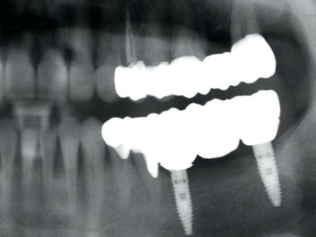 How Long Do Dental Implants Last?