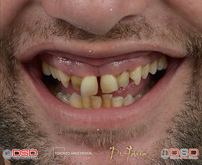 Cosmetic Dentistry Toronto - Porcelain Crowns