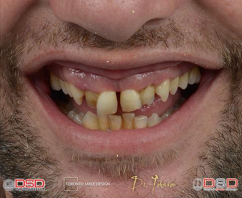 Cosmetic Dentistry Toronto - Porcelain C