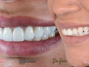 Gummy Smile: Laser Gum Contouring and Other Treatment Options