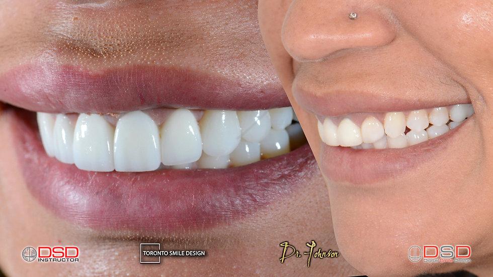 Veneers Toronto - Toronto Cosmetic Denti