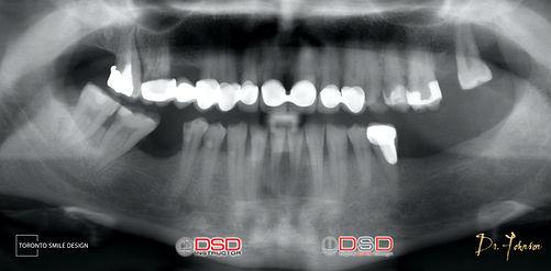 Toronto Implant - Before Implant Treatme