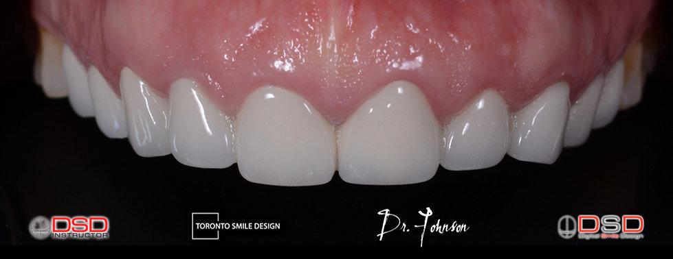 Cosmetic Dentist Toronto - Smile Makeover Toronto.jpeg