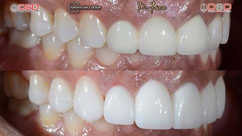 Cosmetic Dentistry Toronto - Toronto Ven