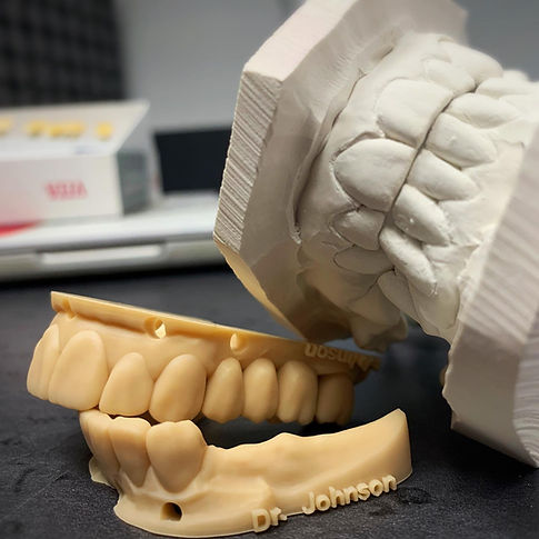 3D Printed Model - Smile Design Makeover - Toronto Veneers
