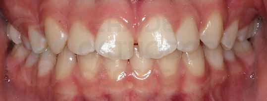 Before Orthodontic Treatment Toronto - Orthodontic Problems - Intraoral Picture of malalignment