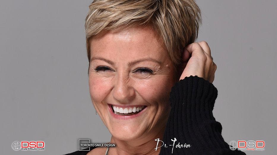 Toronto Dentist - Cosmetic Dentist Toronto.jpeg