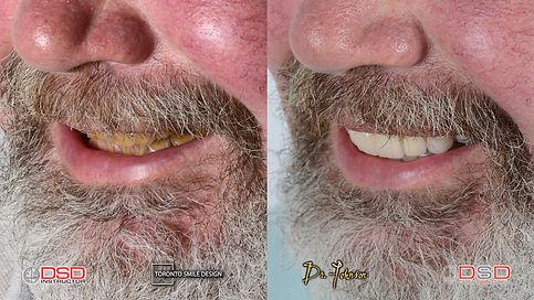 Dental Crown - Before and After Case - Smile Design Toronto