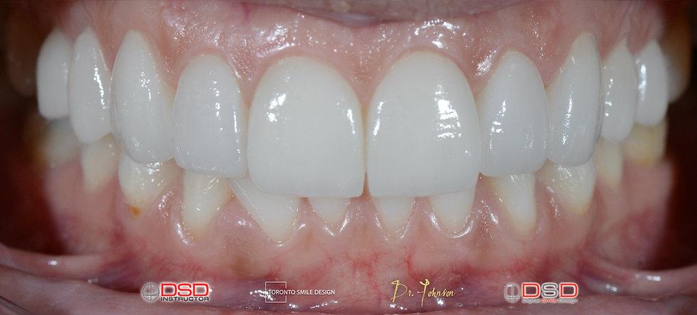 Toronto Cosmetic Dentist Case -  Toronto