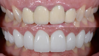 Toronto Cosmetic Dentistry - Smile Makeo