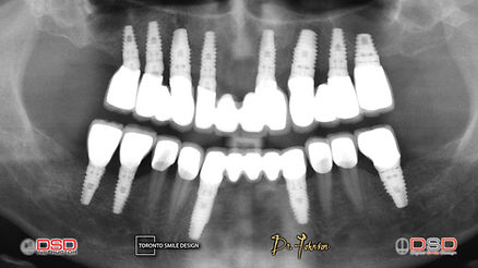 Dental Implants - Full Mouth Rehabilitation.jpeg