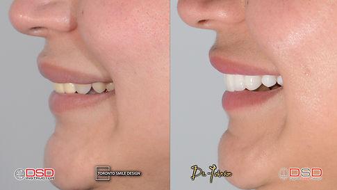 Porcelain Crowns - Smile Design - Cosmet