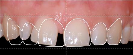 gülüş tasarımı için ortodonti planlaması