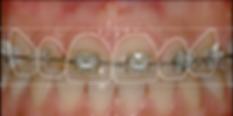 gülüş tasarımı öncesi ortodontik tedavi