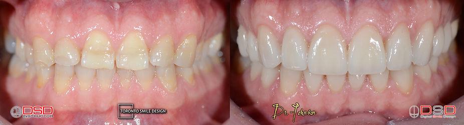 Cosmetic Dentistry Toronto - Best Cosmetic Dentist Specialist Toronto.jpeg